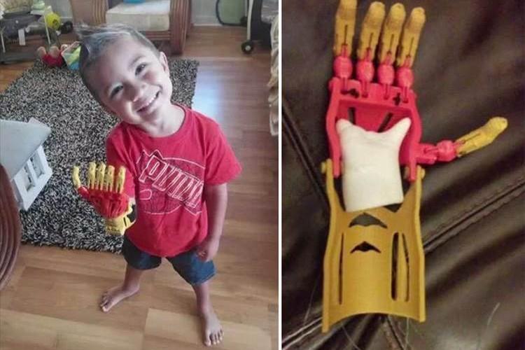 【良い話】3Dプリンターで作ったヒーローの義手が子供たちを笑顔に!