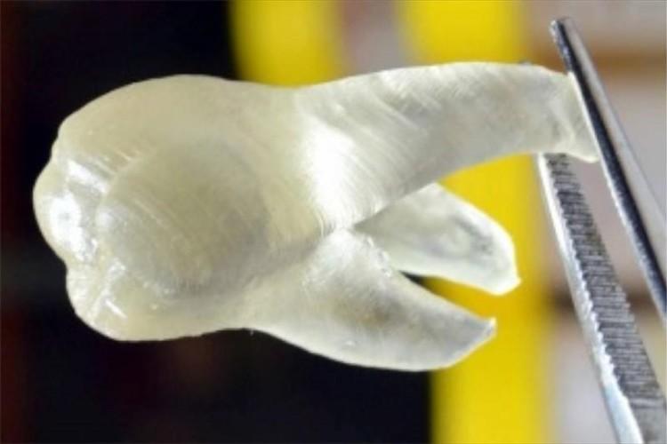 "3Dプリンタで""虫歯ができない義歯""を実現か!?歯に触れただけで虫歯菌が99%死滅"