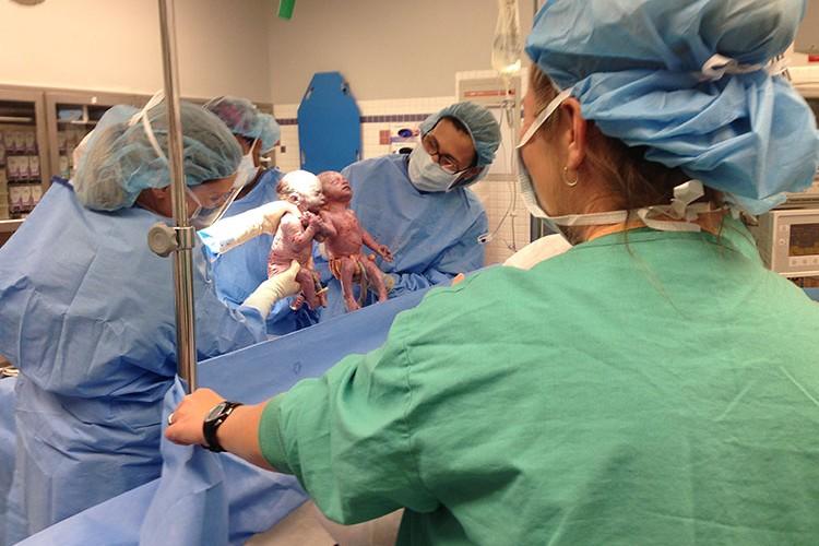 手を繋いで生まれてきた双子の姉妹ジェナとジリアン、2年たった今どうなった?