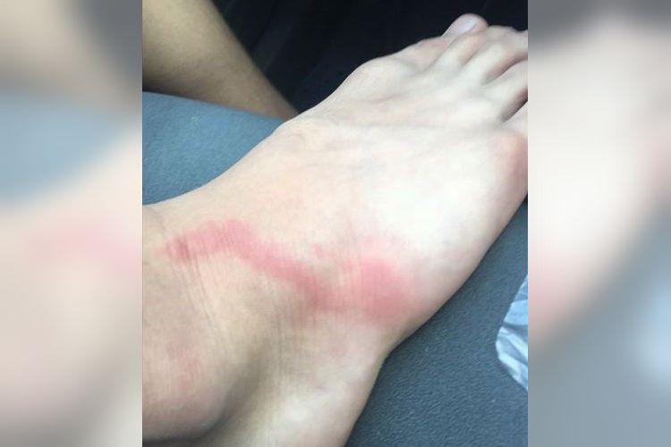虫に刺された部分から伸びる赤い線に要注意!こういう時はすぐお医者さんに…!