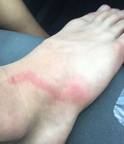 foot_01_main