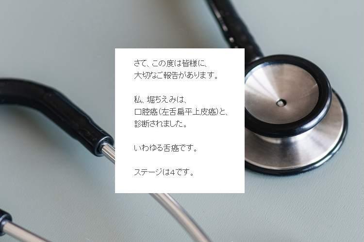 堀ちえみさん(52)がブログにて『ステージ4の口腔がん』であることを公表