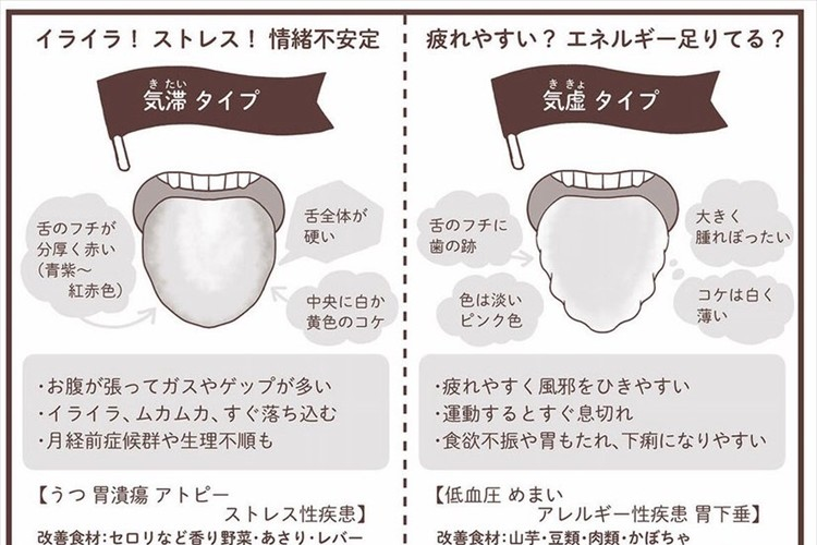 歯磨き前は舌チェックをしよう!日々の健康状態が分かる舌タイプ別の解説がためになる!