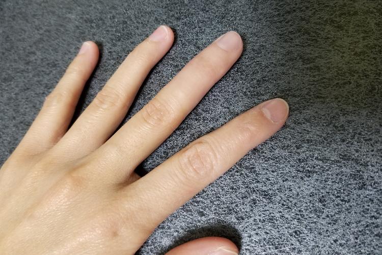 日本の技術は素晴らしい!指先を損傷しピアノを諦めるも、義肢によって再び演奏できるように