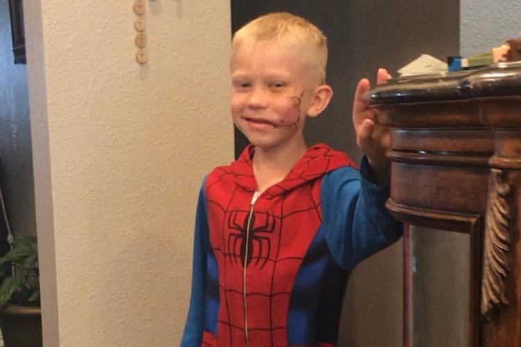 まさに真のヒーロー!90針縫う大怪我を負いながらも犬から妹を救い出した6歳の男の子