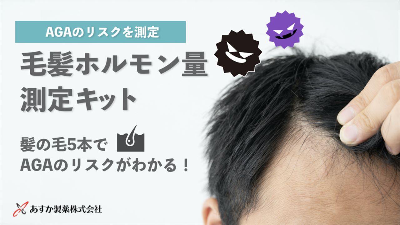 """【薄毛が気になる方は必見!】採取した毛髪から""""AGAリスク""""がわかる検査キットがクラファンで人気!"""